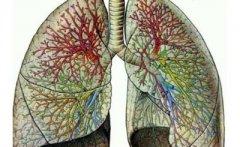 真菌性肺炎的症状 真菌性肺炎怎么治疗
